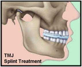 tmj splint causing pain dating